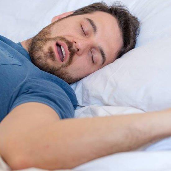 Sleep-Apnea/Anti-Snoring Appliance